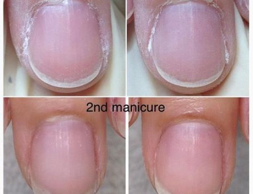 How to fix: naughty nails and crusty cuticles